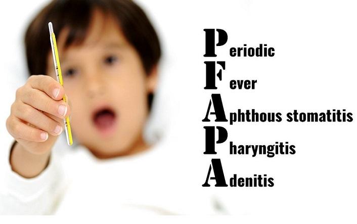 علت و درمان تب دوره ای کودکان همراه با آفت دهان
