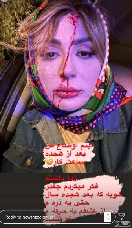 نیوشا ضیغمی با چهره خونی و زخمی عکس گرفت.
