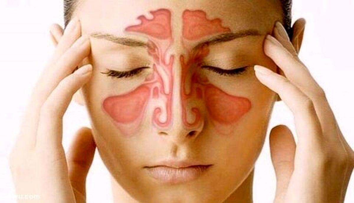 آیا از سینوزیت رنج می برید؟ (راه حل هایی برای رفع این مشکل)