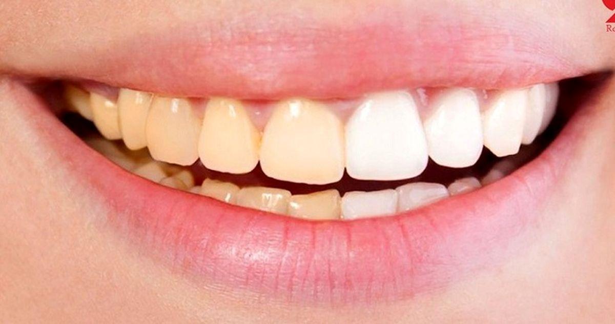 دلیل تغییر رنگ دندان چیست؟