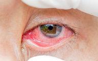 قرمز شدن چشمها؛ از علت تا درمان